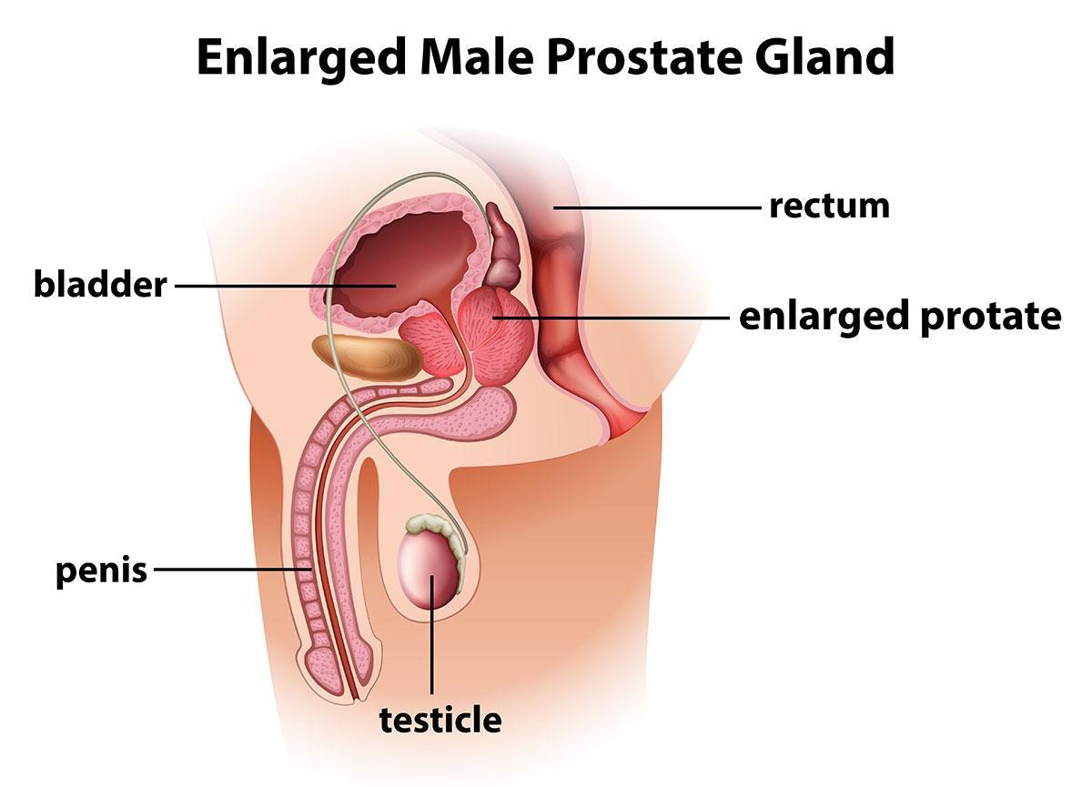 Benign Prostate Disease Melbourne North Eastern Urology